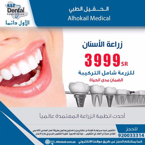 زراعة الأسنان الكل على 4 شامل